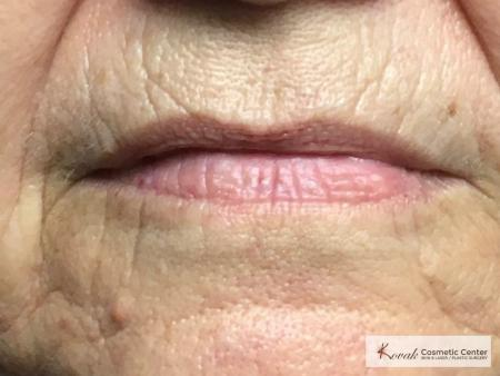 Restylane Silk for lines around the mouth on a 61 year old female - Before Image