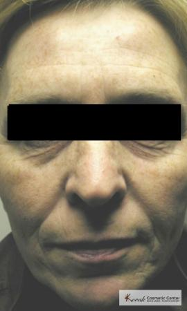 Tyte & Bryte Photorejuvenation of the face on 63 year old family - Before Image
