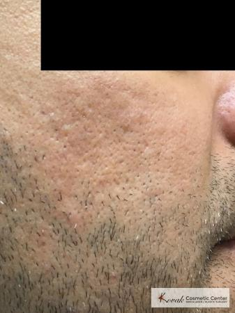 Acne Scars treated with Juvederm and Venus Viva on 35 year old male - After Image 2