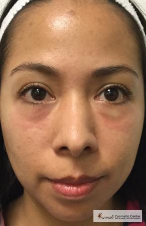 Injectables: Patient 1 - Before Image