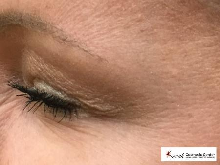 Botox for the eyes on a 40 year old woman - After Image
