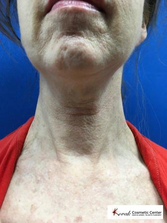 Microneedling on the neck of a 61 year old female using Scarlet - Before Image 1
