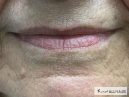 Restylane Silk for lines around the mouth on a 61 year old female - After Image