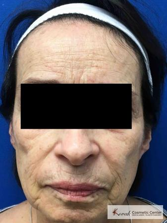 Sculptra for facial volume on a 71 year old female - Before Image