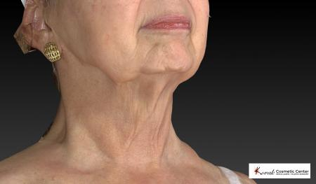 Kybella: Patient 3 - After Image 2