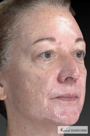 Tyte And Bryte – Face: Patient 6 - Before and After Image 5