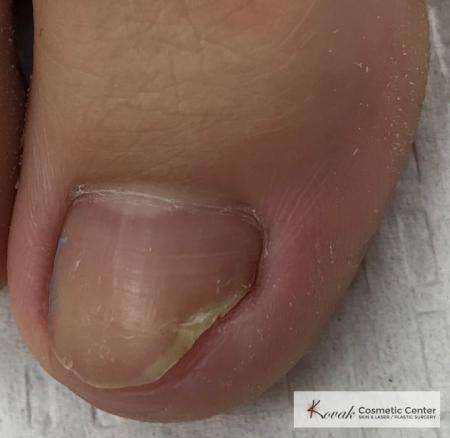 Wart(s): Patient 5 - After Image