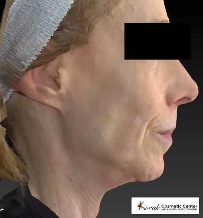 Sculptra®: Patient 1 - Before 2