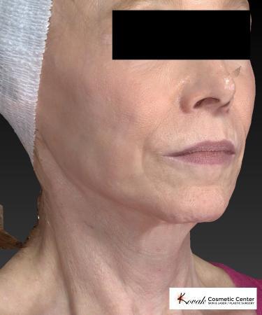 Sculptra®: Patient 1 - After 3