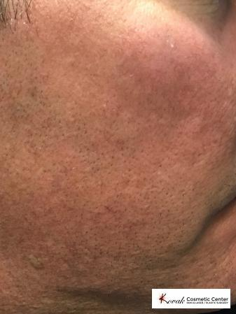 Acne Scars treated with Juvederm on 45 year old male - After Image