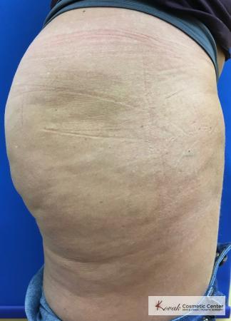 Cellulite Reduction: Patient 4 - After 3