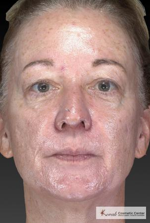 Tyte And Bryte – Face: Patient 6 - Before Image
