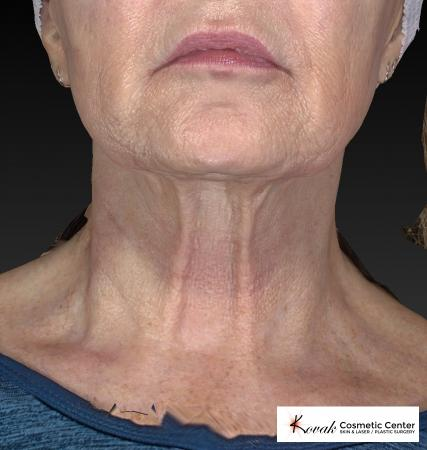Kybella: Patient 2 - After Image