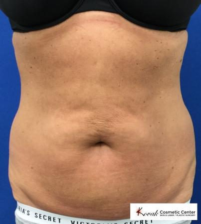Slim Tyte: Patient 1 - After Image