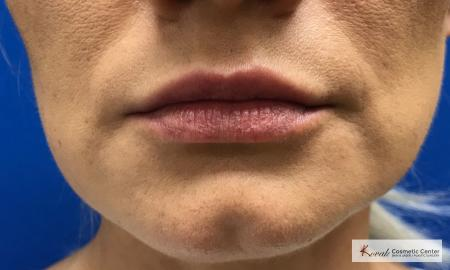 Injectables - Mouth: Patient 6 - After Image