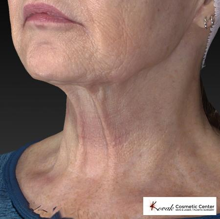Kybella: Patient 2 - After Image 3