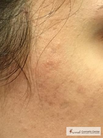 Acne Scars treated with Venus Viva on 28 year old woman - After Image