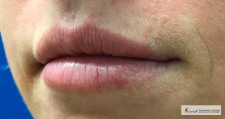 Injectables - Mouth: Patient 7 - After Image