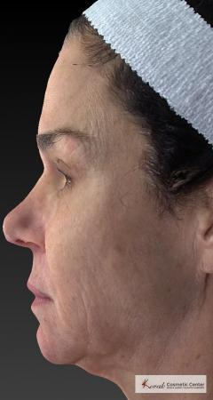 Halo™: Patient 3 - Before Image 2