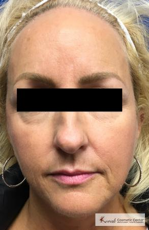 Sculptra®: Patient 8 - After Image