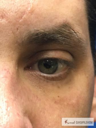 Scar treatment with venus viva on a 39 year old male - After