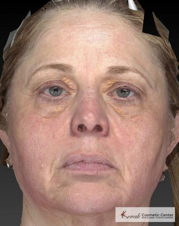 Tyte And Bryte – Face: Patient 3 - After Image 4