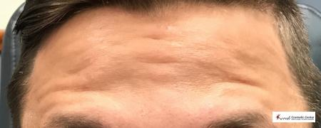 Botox for the forehead on a 30 year old male - After Image