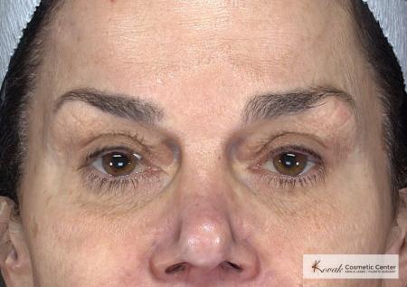 Laser Skin Resurfacing - Face: Patient 2 - Before Image 4