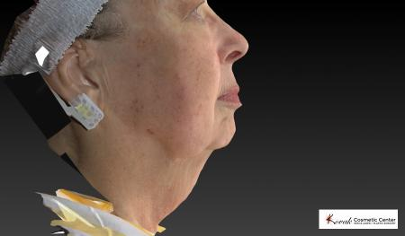 Kybella: Patient 3 - Before Image 1