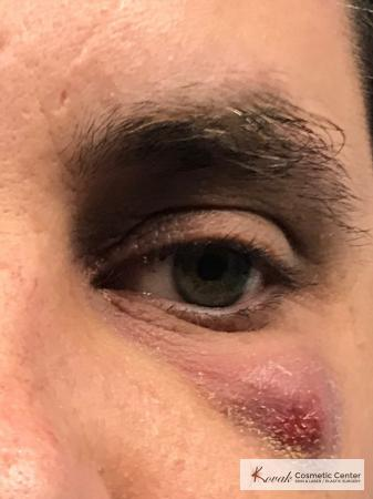 Scar treatment with venus viva on a 39 year old male - Before