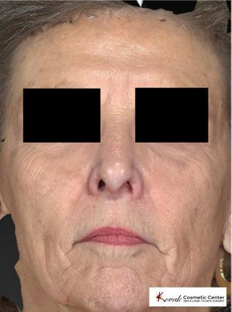 Sculptra®: Patient 2 - After Image