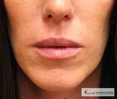 Juvederm Ultra: Patient 1 - Before Image
