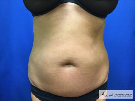 Slim Tyte: Patient 6 - After Image