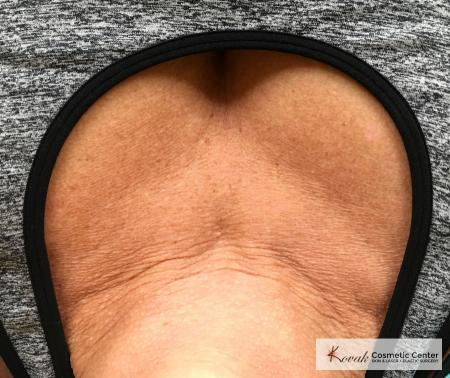 Restylane® Silk: Patient 10 - After Image