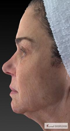Halo™: Patient 3 - After Image 2