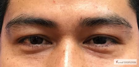 Injectables - Face: Patient 3 - After