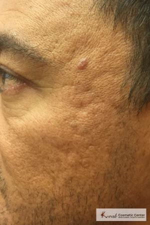 Acne Scars treated with Juvederm on 47 year old male - Before Image