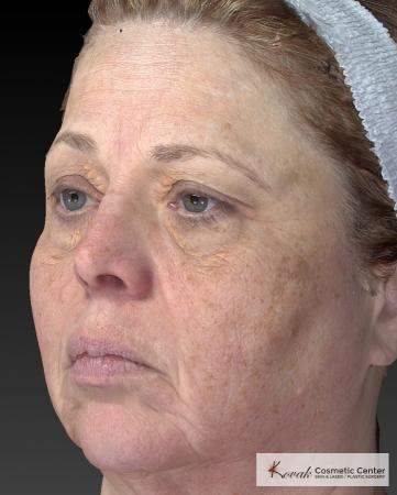 Tyte And Bryte – Face: Patient 3 - Before Image 3