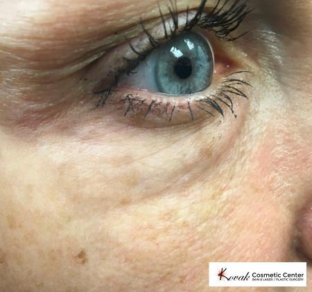 Eye Vein Treatment: Patient 1 - After Image