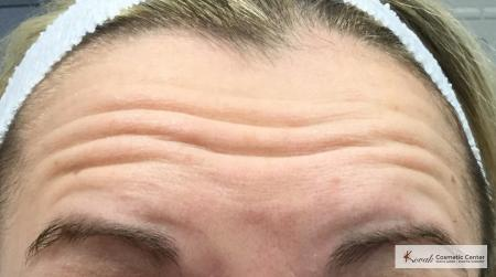 Botox for the brow/forehead on a 30 year old female - Before Image
