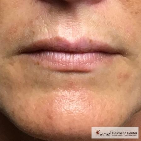 Fillers: Patient 1 - After