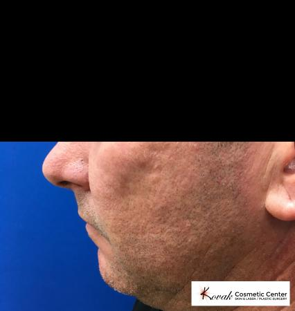 Juvéderm® XC: Patient 1 - Before and After 4