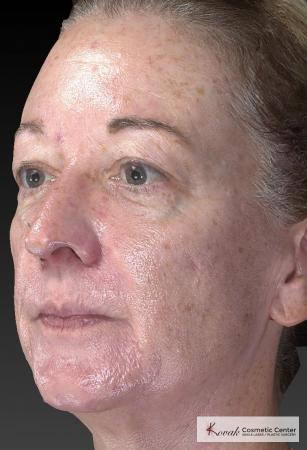 Tyte And Bryte – Face: Patient 6 - Before Image 2