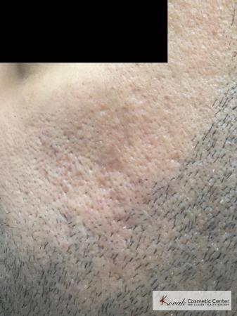 Acne Scars treated with Juvederm and Venus Viva on 35 year old male - After Image