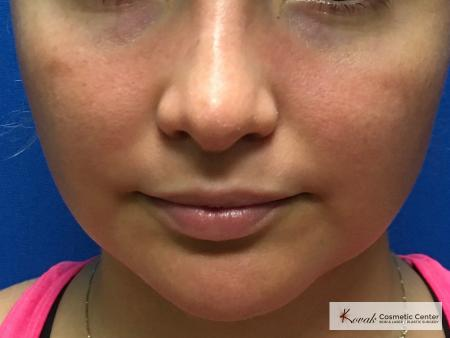 Laser Liposuction of the jawline on a 25 year old female patient - Before Image