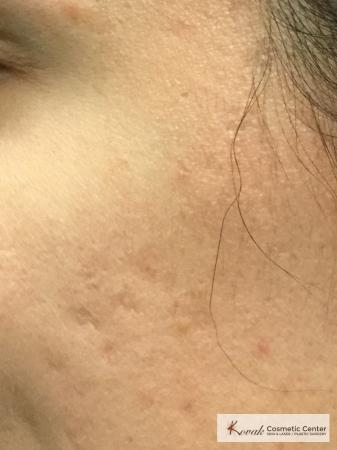 Acne Scars treated with Venus Viva on 28 year old woman - After Image 2