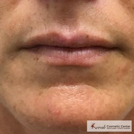 Fillers: Patient 1 - Before