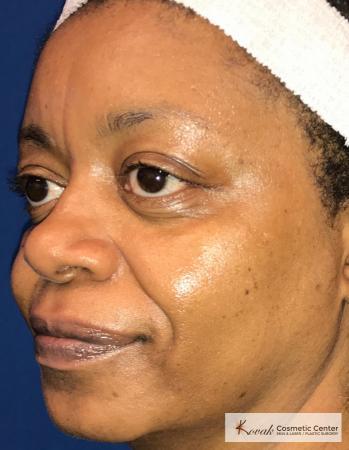 Lip Augmentation: Patient 1 - Before 2