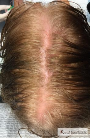 PRP For Hair Thinning: Patient 1 - Before Image