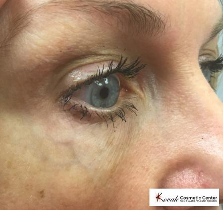 Eye Vein Treatment: Patient 1 - Before Image